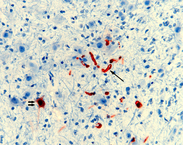 Nipah virus (NiV) antigen in neuron (double arrows) and capillary endothelia (single arrow) of a ferret experimentally infected with NiV-Bangladesh. Rabbit α-NiV N protein antiserum. Original magnification ×200.