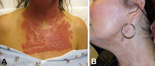 A) Neck and chest of a 53-year-old woman (case-patient 1) 14 days after fractionated CO2 laser resurfacing. B) Neck of the patient after 5 months of multidrug therapy and pulsed dye laser treatment.