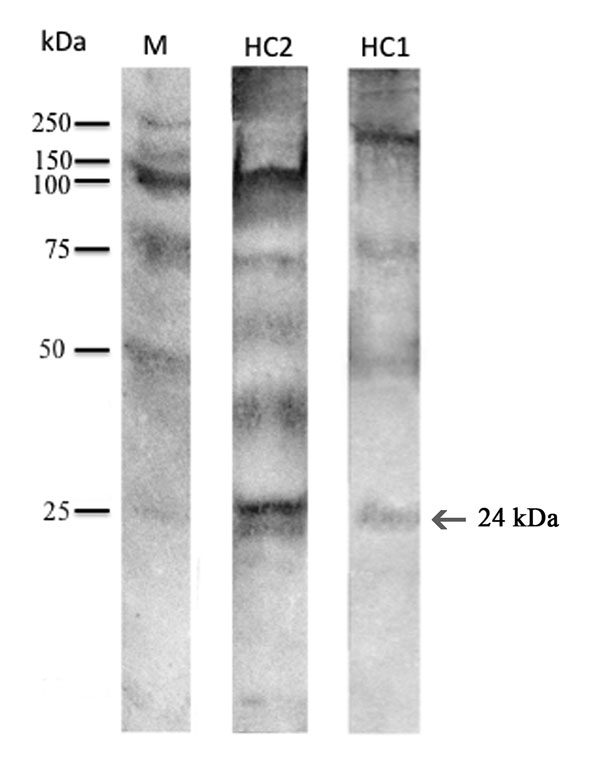 Western blot reaction of the sera from patients HuC1 and HuC2 from Italy showing allergic reaction against Anisakis pegreffii antigens and allergens. M indicates molecular marker; arrow indicates the reaction at 24 kDa (Ani s1). IgE determination was performed with alkaline phosphatase conjugates obtained from goat anti-human IgE. Antigen-antibody binding was visualized by the alkaline phosphatase 5-bromo-4-chloro-3-indolyl phosphate p-nitroblue tetrazolium chloride system until bands appeared.