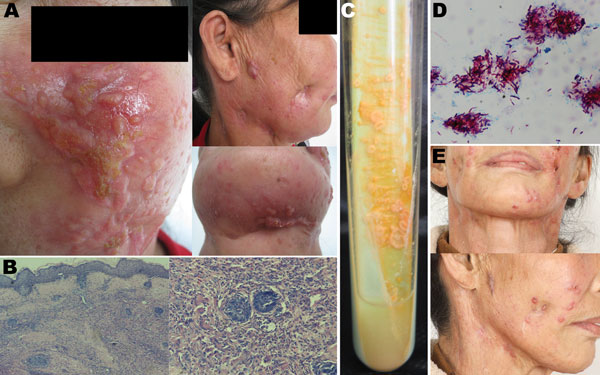 Cutaneous Mycobacterium shigaense infection in a 56-year-old Immunocompetent woman, China. A)  Plaques, scars with scabbing, nodules, and concave scars on the face and neck and papules and scarring on the submaxilla. B) Histopathologic results, showing hyperplastic epidermis and infiltration with lymphocytes, neutrophilic leukocytes, multinuclear giant cells, and epithelioid cells in the dermis. C) Samples streaked  on Löwenstein–Jensen medium at 32°C formed smooth, yolk yellow creamy colonies.