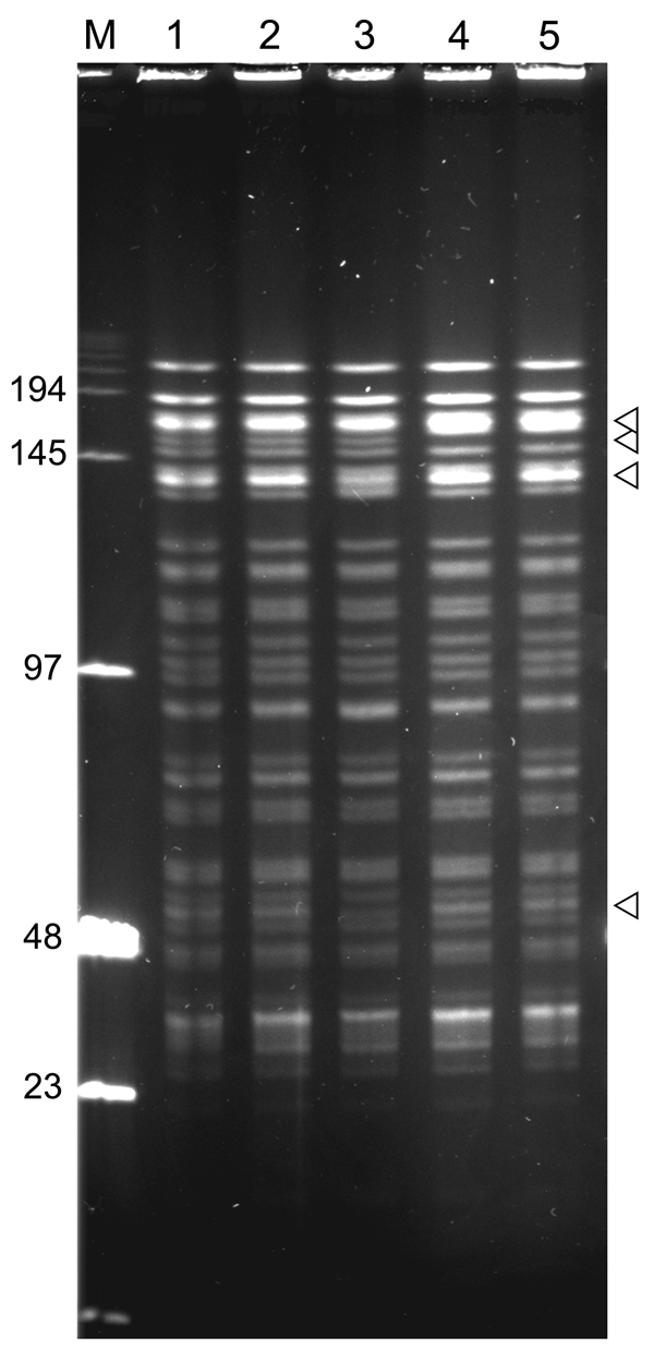 NotI pulsed-field gel electrophoresis patterns of Yersinia pestis isolates from plague outbreak in Algeria, 2009. Lane M, low-range DNA marker (New England Biolabs, Ipswich, MA, USA); lane 1, IP1860 (Kehailia); lane 2, IP1861 (Hama Ali); lane 3, IP1862 (Hamoul); lane 4, IP1863 (Ain Temouchent); lane 5, IP1864 (Ain Temouchent). Values on the left are in kilodaltons. Arrowheads indicate positions of variable bands.
