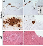 Thumbnail of Immunohistochemical analysis of cattle bovine spongiform encephalopathy (BSE) prion–infected 129MM Tg35c mouse brain. Hippocampal region (A) and striatum (B) from a transgenic 129MM Tg35c mouse with subclinical prion infection culled 700 days after inoculation with cattle BSE prion inoculum I038. Panels A–D show abnormal prion protein (PrP) immunoreactivity stained with monoclonal antibody ICSM35 against PrP Panels E and F show hematoxylin and eosin–stained sections. Boxed regions i