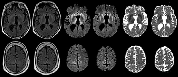 Maps showing axial fluid attenuated inversion recovery (FLAIR), diffusion-weighted imaging (DWI), and apparent diffusion coefficient (ADC) at the level of the basal nuclei (top row) and dorsal frontoparietal cortex (bottom row) of the brain of a 33.8-year-old man with agenesis of the corpus callosum, schizencephaly, and heterotopia. Note the symmetrical DWI signal hyperintensities in the striatum and dorsomedial part of the thalami. In addition, DWI signal hyperintensities occurred in the cingul