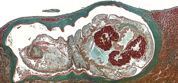 Oblique cross-section of liver of a patient (immigrant) from Togo, showing a well-preserved Armillifer armillatus nymph in a subcapsular location. The annulated parasite is encapsulated by its shed cuticle (exuvia) and dense fibrosis. Consistent with the viable type of a pentastomid lesion (3), no inflammatory infiltrate is visible. This image also shows internal structures of the pentastome, such as prominent bunches of acidophilic glands surrounding the intestine (Masson's trichrome stain, ori