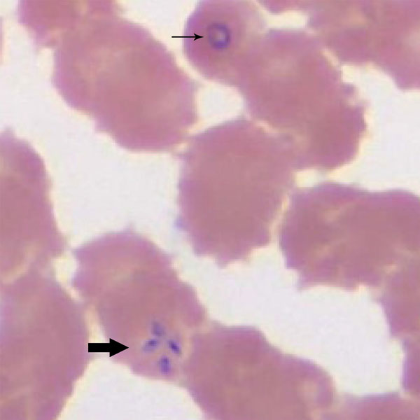 Wright-stained blood smear for patient 1 with babeosis on day 1 of hospitalization, eastern Pennsylvania, USA, showing an intraerythrocytic trophozoite of Babesia microti in a ring form (thin arrow) and a tetrad arranged in a cross-like pattern (thick arrow). Original magnification ×1,000.
