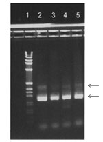 Thumbnail of Agarose gel stained with ethidium bromide. Reverse transcription PCR products from 4 patients are shown in lanes 2–5 and 1-kb DNA Ladder (Life Technologies Corp., Carlsbad, CA, USA) in lane 1. Arrows indicate 2 bands corresponding to ≈250 and ≈400 bp.