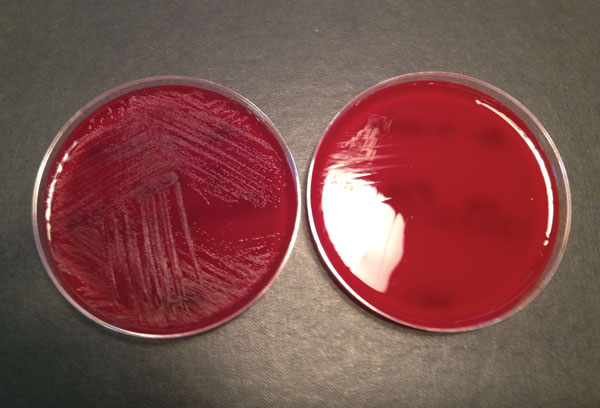 Blood agar plates with (left) and without (right) pyridoxal supplement from a study of neonatal Granulicatella elegans bacteremia, London, UK.