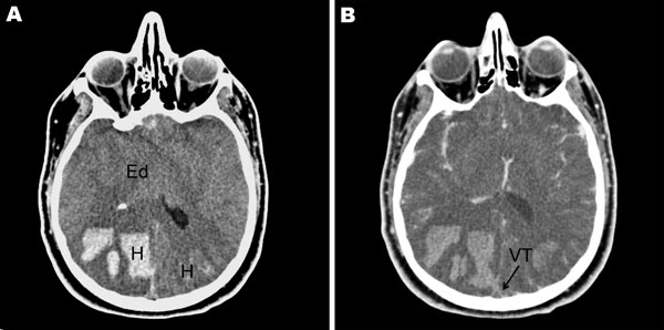 A) Noncontrast cranial computed tomographic (CT) scan of a 26-year-old immunocompetent man with influenza, showing diffuse cerebral edema (Ed) and bilateral parieto-occipital hematoma (H). B) Cranial CT scan with contrast injection, showing diffuse cerebral edema (Ed) and cord sign (arrow) related to a venous thrombosis (VT) of the superior sagittal sinus.
