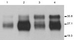 Thumbnail of Immunoblots of brain extracts from hemizygous 113LBoPrP-Tg037+/− 113LBoPrP-Tg009+/− mouse lines compared with those of cow brain extract and BoPrP-Tg110 mouse brain extract. Brain homogenates were analyzed by Western blotting with monoclonal antibody 2A11 (30). Lane 1, 113LBoPrPTg-009; lane 2, 113LBoPrPTg-037; lane 3, Cow; lane 4, BoPrPTg-110. Equivalent amounts of total protein were loaded into each lane. 113L, leucine substitution at codon 113; BoPrP, bovine prion protein. Values