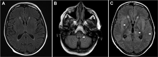 Magnetic resonance imaging axial flair sequence of brain of 66-year-old woman with fatal encephalitis, Bordeaux, France, 2012. A) No hypersignal at day 6. B) Bilateral posterior hypersignals in the medulla at day 13. C) Bilateral supratentorial hypersignals in the cortex at day 24, the white matter, and the basal ganglia. Hypersignals are indicated by white arrowheads.