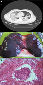 Thumbnail of A) Computed tomographic image of the chest of a 74-year-old patient (patient 1) with fatal hemorrhagic pneumonia, Catania, Italy, showing multifocal confluent parenchymal opacities. B) Postmortem view of the lungs showing hemorrhage and edema. C) Microscopic evidence of necrosis and bacteria in the lungs (original magnification ×40).