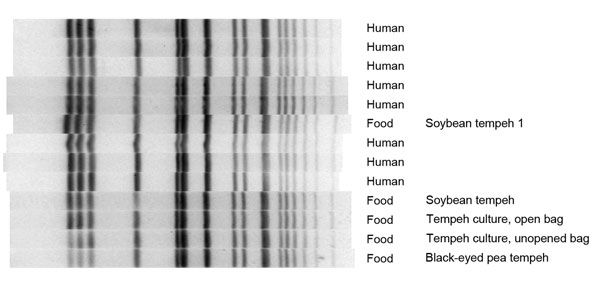 Pulse-field gel electrophoresis dendrogram showing Xba1 enzyme band patterns for 8 case-patients, tempeh, and Rhizopus spp. starter culture associated with outbreak of Salmonella enterica serovar Paratyphi B variant L(+) tartrate(+) gastroenteritis, by date of symptom onset, North Carolina, USA, 2012.