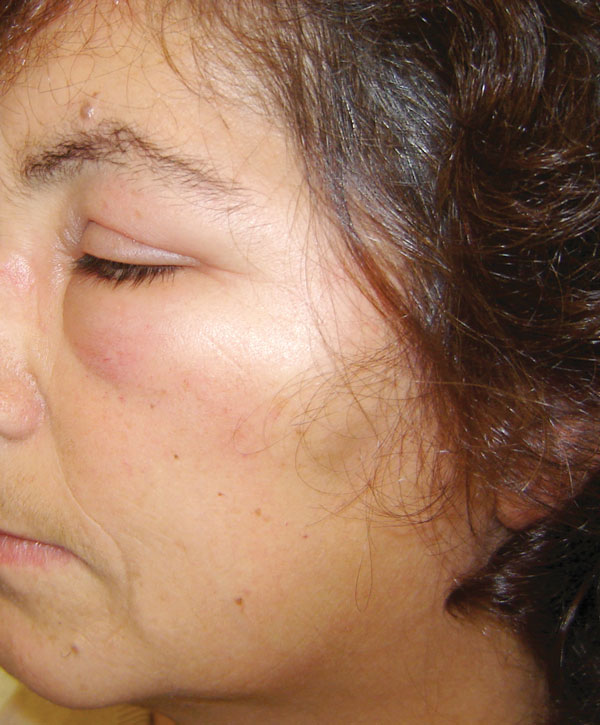Left peri-orbital edema in a female patient in Portugal. Tick-borne lymphoadenopathy caused by Rickettsia slovaca infection was later confirmed.