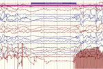 Thumbnail of Ictal electroencephalographic recording of a 12-year-old boy in Uganda with nodding syndrome obtained during a typical nodding episode. Shown is a sudden electrodecremental episode with concomitant electromyographic decrease in neck muscles, followed by sharply contoured theta activity.