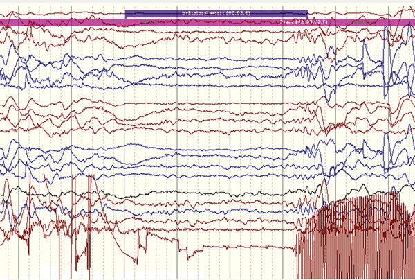 Ictal electroencephalographic recording of a 12-year-old boy in Uganda with nodding syndrome obtained during a typical nodding episode. Shown is a sudden electrodecremental episode with concomitant electromyographic decrease in neck muscles, followed by sharply contoured theta activity.