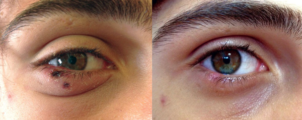Palpebral eschars caused by Rickettsia sibirica mongolitimonae infection in a 16-year-old febrile boy with fever, southern France, spring, 2012 (left). He recovered after doxycycline treatment (right).