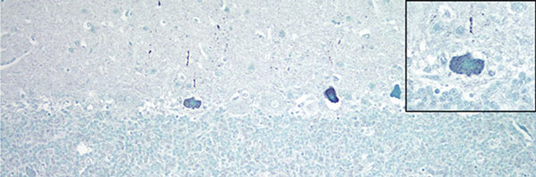 Cerebellum of a yearling steer with encephalomyelitis (animal 1). Punctate to diffuse positive (green) staining of Purkinje cells cytoplasm and dendritic processes can be seen; inset shows a higher magnification of a positive Purkinje cell. In situ hybridization for viral RNA. Original magnification ×400.
