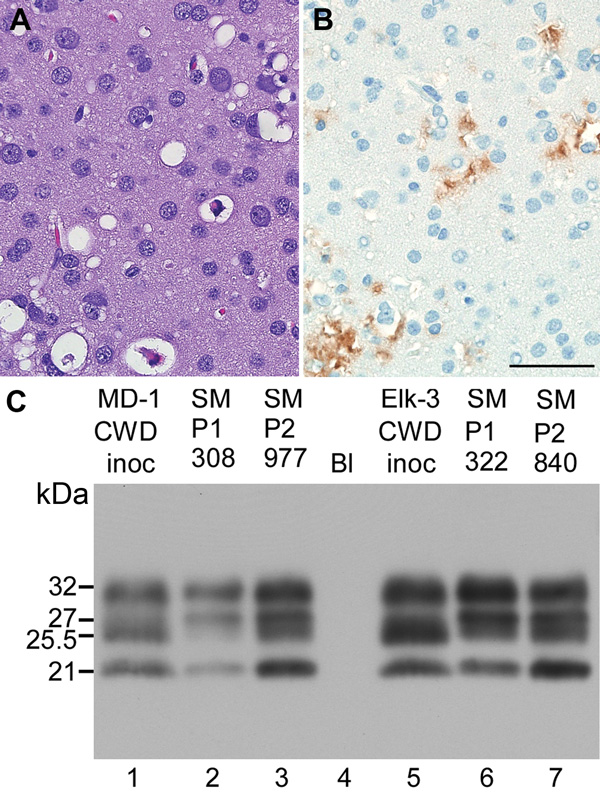Neuropathologic features and immunoblot results of second-passage squirrel monkeys that had chronic wasting disease (CWD). Scale bar represents 50 µM and is applicable to panels A and B. Panels A and B show neuropathologic changes in the occipital lobe of SMP2-CWD monkey 977, which was euthanized at 24 months postinoculation. A) Hematoxylin and eosin staining show prominent spongiform changes. B) Immunohistochemical staining for disease-associated prion protein (PrPres) (brown) with anti-PrP ant