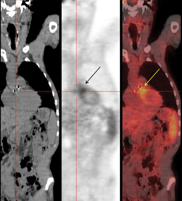 Positron emission tomography/computed tomography fusion imaging for a 56-year-old man in southern France with Bartonella henselae prosthetic valve endocarditis. Left panel, frontal computed tomography image showing morphologic findings. Middle panel, 18F-fluorodeoxyglucose positron emission tomography (18FDG-PET) showing a cardiac hotspot (arrow) in relation to abnormal uptake of 18FDG. Right panel, fusion image combining 18F-FDG-PET and computed tomography showing localization of an aortic valv