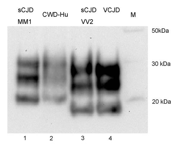 PrPres typing of the CWD amplification product. The CWD PMCA product derived from amplification in a human brain homogenate substrate (PRNP codon 129MM) was compared by Western blotting with PrPres from human brain samples from cases of sCJD of the MM1 subtype, sCJD of the VV2 subtype, and variant CJD. The PrP detection antibody was 3F4. PrPres, protease-resistant prion protein; CWD, chronic wasting disease; PMCA, protein misfolding cyclic amplification; sCJD sporadic Creutzfeldt-Jakob disease;