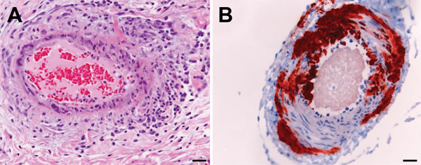 Histologic and immunohistologic findings in Hendra virus–infected horse tissue. A) hematoxylin and eosin staining shows systemic vasculitis affecting the lung. B) Immunohistologic examination, using polyclonal rabbit anti-Nipah N protein, indicates Hendra virus antigen in a blood vessel in the brain. Scale bar represent 50 μm.