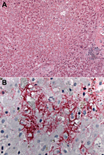 Thumbnail of Photomicrographs showing histopathologic features and immunolocalization of lymphocytic choriomeningitis virus (LCMV) antigens in liver tissue from a liver transplant recipient with donor-derived LCMV infection. A) Massive hepatic necrosis, without prominent inflammation. Hematoxylin and eosin staining. Original magnification, ×50. B) LCMV antigens within hepatocytes and sinusoidal lining cells. Immunoalkaline phosphate staining, naphthol fast red substrate with light hematoxylin co