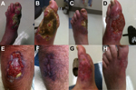 Thumbnail of Progression of lesions caused by Mycobacterium ulcerans infection before, during, and after treatment. A–C) Left foot before treatment. D) Left lower leg during treatment. E) Right calf before treatment. F) Right calf after treatment. G, H) Left foot after treatment.