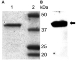 Thumbnail of Polyacrylamide gel electrophoresis purification (A) and Western blot analysis (B) of recombinant glycerophosphodiester phosphodiesterase (rGlpQ). A) Coomassie blue staining of purified Borrelia miyamotoi sensu lato rGlpQ (lane 1) and of Precision Plus Protein Prestained Standards (Bio-Rad, Laboratories, Hercules, CA, USA) (lane 2). B) Western blot analysis of B. miyamotoi sensu lato–positive control mouse serum shows 39-kDa rGlpQ-specific band (arrow).