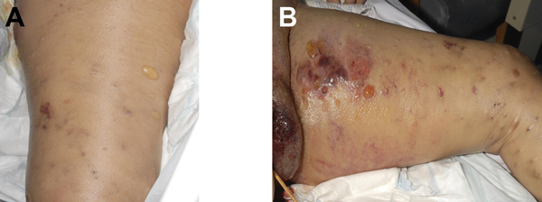 Manifestation of heroin-associated anthrax in patient 1, who injected heroin under the skin of her left thigh. Panel A demonstrates substantial edema and blistering of skin. Manifestation is more pronounced in Panel B, which demonstrates more blistering and bruising.