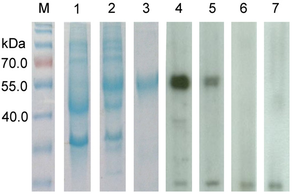 Sodium dodecyl sulfate-polyacrylamide gel electrophoresis and Western blot analysis of a novel coronavirus, dromedary camel coronavirus UAE-HKU23, discovered in dromedaries of the Middle East, 2013.Nucleocapsid protein was expressed in Escherichia coli. M, protein molecular-mass marker; kDa, kilodaltons. Lanes: 1, non-induced crude E. coli cell lysate; 2, induced crude E. coli cell lysate of DcCoV UAE-HKU23 nucleocapsid protein; 3, purified recombinant DcCoV UAE-HKU23 nucleocapsid protein; 4, dr
