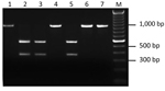 Thumbnail of Restriction fragment length polymorphism patterns of the 16S ribosomal DNA for 7 A. phagocytophilum PCR-positive I. scapularis. All amplicons were produced by semi-nested PCR and digested with the restriction enzyme Kpn2I. Lane M, molecular mass marks.
