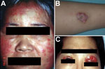 Thumbnail of Skin lesions caused by Mycobacterium abscessus subsp. abscessus. A) Diffuse erythematous papular eruptions on the face and bilateral cervical lymphadenitis in a middle-aged man. B) A circumscribed subcutaneous nodule with pus discharge on the right arm of a 12-year-old boy. C) Wound infection over both upper eyelids of a 36-year-old woman; the infection developed 1 week after cosmetic surgery.