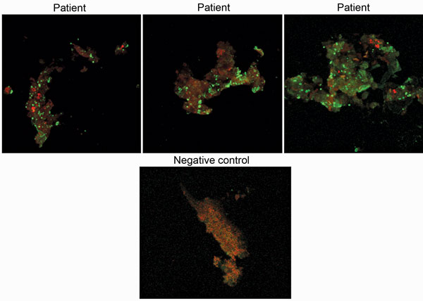 Immunofluorescence assay results of samples from 3 Candidatus Coxiella massiliensis–infected patients and 1 noninfected person (negative control).
