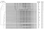 Thumbnail of Pulsed-field gel electrophoresis profiles of XbaI-digested genomic DNA from patient (P) and environmental (E) Elizabethkingia meningoseptica isolates from an outbreak in an adult critical care unit, London, UK, 2012–2013. Two additional isolates from patients demonstrated unique pulsed-field gel electrophoresis profiles and are not shown. Patient numbers (e.g., P9) match those given in Table 1.