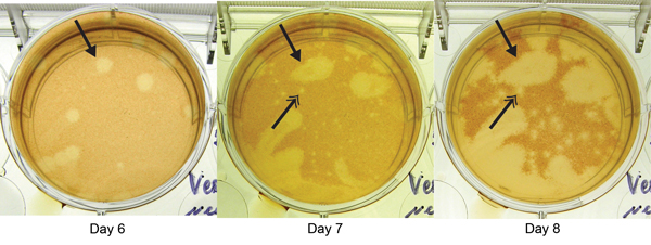 Plaque reduction neutralization test of patient sample for Heartland virus, showing images of the same well obtained days 6, 7, and 8 postinoculation at a dilution of 1:20. Arrows with single heads indicate appearance of a novel virus plaque beginning at day 6. Arrows with double heads indicate development of a typical Heartland virus plaque, apparent on day 7 and more evident on day 8, generated from a control strain added to each well in defined quantities to identify Heartland virus–specific