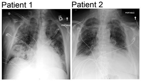 Admission chest radiographs of 2 adults with severe infections with adenovirus type 7 in family, Illinois, USA, 2014. Chest radiograph of patient 1 shows diffuse parenchymal consolidation involving all lobes. Chest radiograph of patient 2 shows interstitial changes in all lung fields and cardiomegaly.