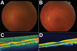 Thumbnail of Color fundus and optical coherence tomography (OCT) images during active uveitis and after resolution for a physician from the United States who contracted Ebola virus disease in Liberia and had eye inflammation develop during convalescence. A) Color fundus image of the left eye showing a hazy view to the posterior pole during active uveitis (standardization of uveitis nomenclature classification grade 2–3). B) Color fundus image of the left eye showing a clear view to the posterior