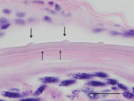 Thumbnail of Histologic section of the eye of a dog infected with Onchocerca lupi nematodes, Summerside, Prince Edward Island, Canada. The typical O. lupi nematode cuticular pattern is shown, with 2 inner transverse striae (dashed arrows) within the interval between 2 outer cuticular ridges (solid arrows). Hematoxylin and eosin stain, original magnification ×100. Scale bar indicates 20 μm.