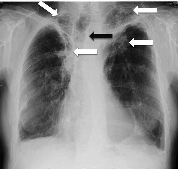 Chest radiograph showing bilateral upper lobe chronic pulmonary aspergillosis, which can be easily mistaken for pulmonary tuberculosis. White arrows indicate areas of abnormality (some pleural thickening and opacification) in both apices, which are similar, although slightly more obvious, to findings in pulmonary tuberculosis. Black arrow indicates the trachea pulled to one side by the contraction and fibrosis on that side. Image used with permission of David Denning (©2016, all rights reserved)