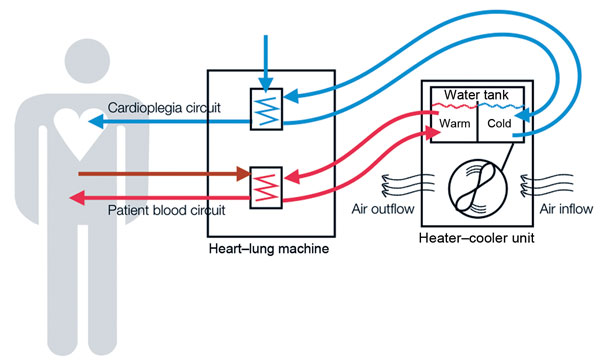 Schematic representation of heater–cooler circuits tested for transmission of Mycobacterium chimaera during cardiac surgery despite an ultraclean air ventilation system. Blue arrows indicate cold water flow, and red arrows indicate hot water flow and patient blood flow.