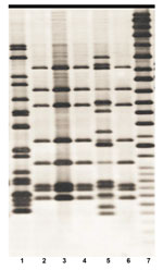 Thumbnail of IS6110 Southern blot hybridization patterns of 6 Mycobacterium tuberculosis isolates recovered from elephants A (lanes 1–5) and C (lane 6) (4) in study of tuberculosis in captive elephants, Albuquerque, New Mexico, USA, 1997–2013. The fingerprint pattern in lane 1 types the strain to principal genetic group 1, the fingerprint pattern in lanes 2–4 and lane 6 types the strain to principal genetic group 2 and the fingerprint pattern in lane 5 types the strain to principal genetic group