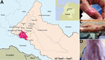 Thumbnail of Location of 6 patients with poxvirus infections and photographs of lesions from 3 patients, Colombia, 2014. A) The municipalities of Valparaíso (residence of patients 1–5) and Solita (residence of patient 6) are 36 km apart in the southwestern region of the department of Caquetá. Yellow, white, and blue stars denote locations of patients 2, 3, and 4, respectively. Inset shows location of Caquetá in Colombia. Map source: Departamento Administrativo Nacional de Estadística (http://geo