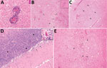 Thumbnail of Hematoxylin and eosin–stained autopsy specimens from a patient with a fatal infection of Murray Valley encephalitis virus imported from Australia to Canada, 2011. A) Pons showing perivascular inflammatory infiltrate (original magnification ×40). B) Thalamus showing extensive inflammation (arrows) surrounding an area of rarefaction caused by necrosis (arrowheads) and neuronal loss (original magnification ×10); inset shows a microglial nodule (original magnification ×20). C) Pyramidal