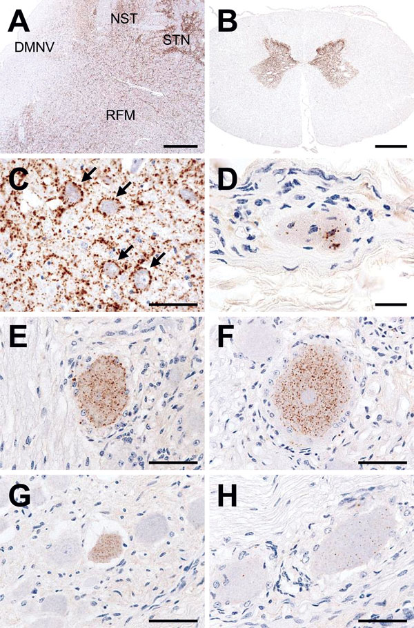 Immunohistochemical detection of disease-associated prion protein (PrPSc) in a cow at 88 months after oral inoculation with brain homogenate of L-type bovine spongiform encephalopathy agent. A) Low amount of PrPSc deposition in the dorsal motor nucleus of the vagus nerve (DMNV) compared with the more pronounced depositions in the solitary tract nucleus (NST), the spinal tract of trigeminal nerve (STN), and the reticular formation (RFM) in the medulla oblongata at the obex level. Scale bar indica