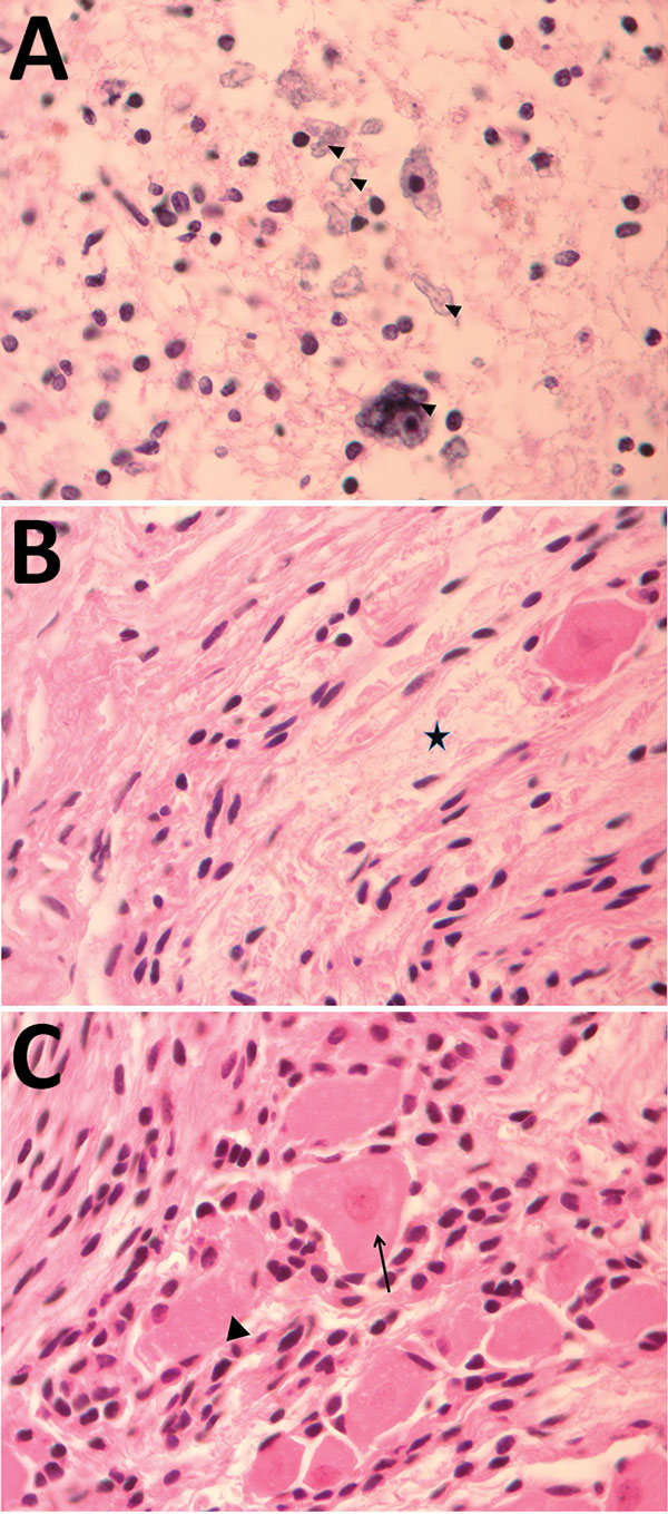 Pathology findings for case 2, involving a fetus examined after pregnancy termination who had severe neurologic defects attributed to maternal Zika virus infection, Colombia. A) Spinal cord slice showing neuropil disruption with multiple calcifications (arrowheads). B) Nerve showing disruptive changes of axons (Wallerian degeneration) (black star). C) Dorsal root ganglion showing spinal ganglion with satellitosis (arrow) and neuronophagia of ganglion cells (arrowhead). Hematoxylin and eosin stai
