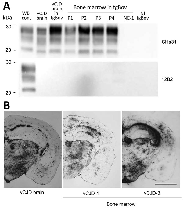 Detection of proteinase K–resistant prions (PrPres) by using Western blotting and paraffin-embedded tissue (PET) blotting of brains of transgenic mice expressing bovine PrP (tgBov). A) PrPres WB of a vCJD sample (frontal cortex), tgBov mice (brain) inoculated with the same vCJD reference isolate, bone marrow samples from vCJD-affected patients (vCJD 1–vCJD-4 [P1–P4]; Table 2), and a non–vCJD control (NC-1; Table 2). A scrapie isolate (WB cont) and a noninoculated tgBov brain (vCJD brain) homogen