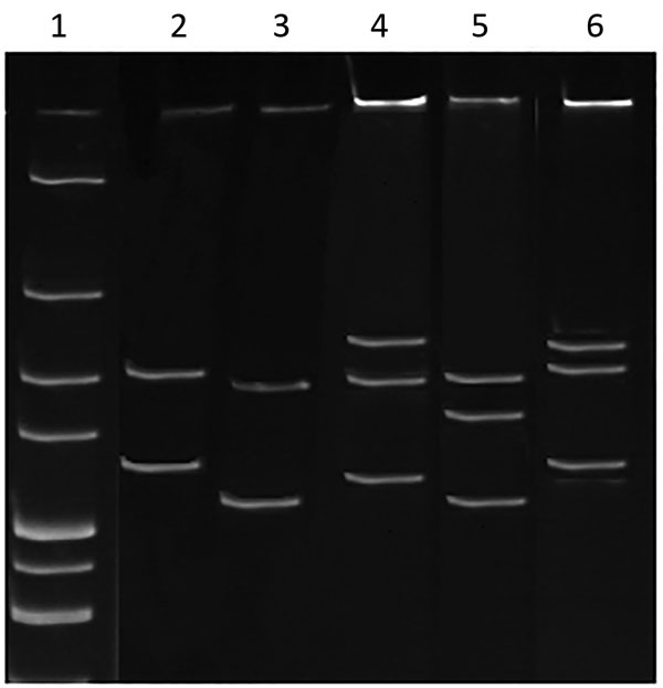 Single-strand conformation polymorphism profile of Anaplasmataceae isolate from reptiles, Slovakia, 2004–2011. The 247-bp 16S rRNA PCR fragments from the isolate from reptiles and known Anaplasmataceae species were denatured and electrophoresed. Lane 1, 100-bp ladder marker; lane 2, Candidatus Neoehrlichia mikurensis; lane 3, Anaplasma phagocytophilum; lane 4, isolate Candidatus Cryptoplasma sp. REP (reptile) obtained in this study; lane 5, A. ovis; and lane 6, Wolbachia.