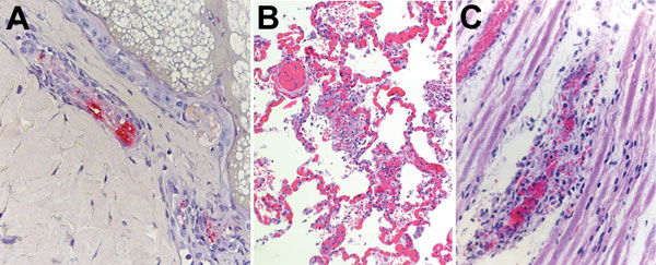 Histologic slides of autopsy tissue from patients who acquired Rocky Mountain spotted fever in northern Mexico and died at hospitals in the United States, 2013–2016. A) Immunohistochemical stain of Rickettsia rickettsii antigens (red) in inflamed blood vessel adjacent to eccrine gland in a skin biopsy specimen from case-patient 1. Immunoalkaline phosphatase with naphthol-fast red and hematoxylin counterstain; original magnification ×50. B) Diffuse pulmonary capillaritis in case-patient 4. Hemato