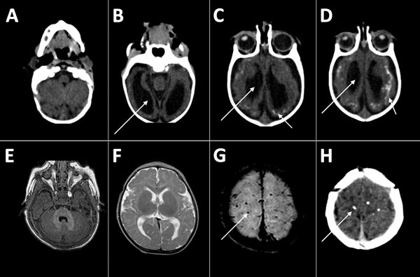 Thumbnail of Computed tomography radiographs of the brains of 2 infants with dysphagia and microcephaly caused by congenital Zika virus infection, Brazil, 2015. A–D) Images for patient 4 show malformation of cortical development, ventriculomegaly (long arrows), and calcifications in cortical and subcortical white matter in transition between cortex and white matter (short arrows). E–H) Images for patient 6 show no malformation of cortical development or ventriculomegaly, but calcifications are v