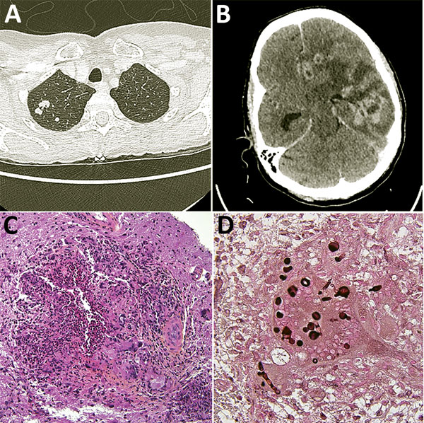 Diagnostic testing of a 52-year-old woman from France living in Mali who had Nannizziopsis spp. fungal infection. A) Thoracic-abdominal-pelvic scan shows pseudo-nodular lesions in the apex of the right lung, of which one is excavated. B) Cerebral computed tomography scan shows contrast enhancement on several hemispheric nodules on the left and in frontal, parietal, and temporal regions, responsible for large surrounding edema and compression of the left lateral ventricle. The median line is devi